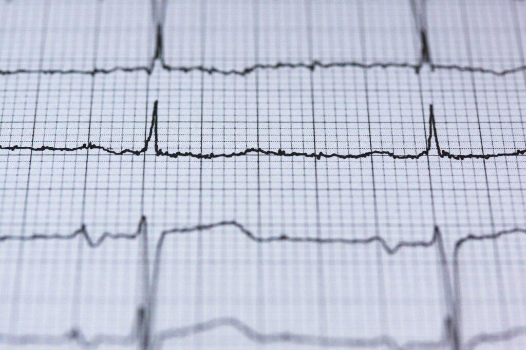 ecg, electrocardiogram, medical